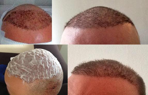 Процесс отрастания волос после пересадки