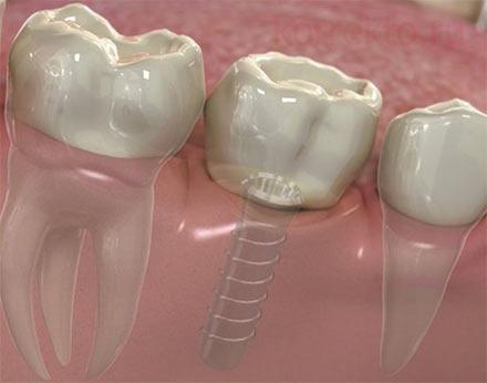 Что можно и нельзя после имплантации зубов