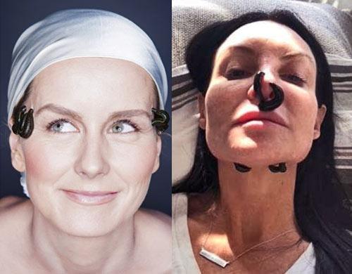 После гирудотерапии